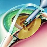 drobljenje i usisavanje katarakte