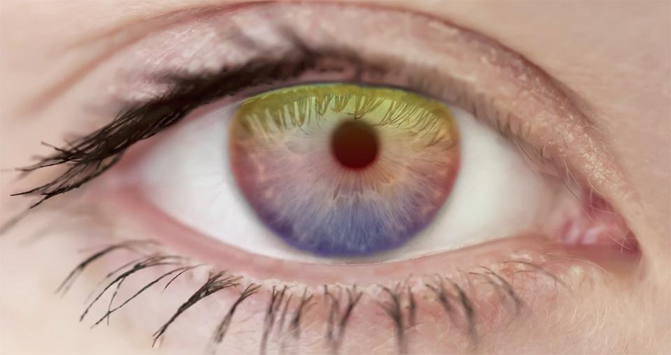 Trajna promena boje oka